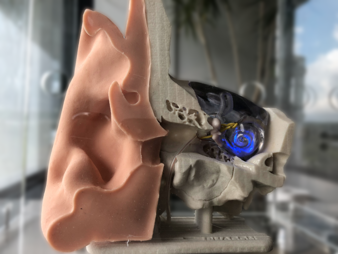 Model of a human ear with an optical cochlear implant.